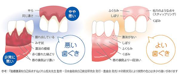自然治癒力をもった小宇宙人体と歯 その25     ~歯周病~